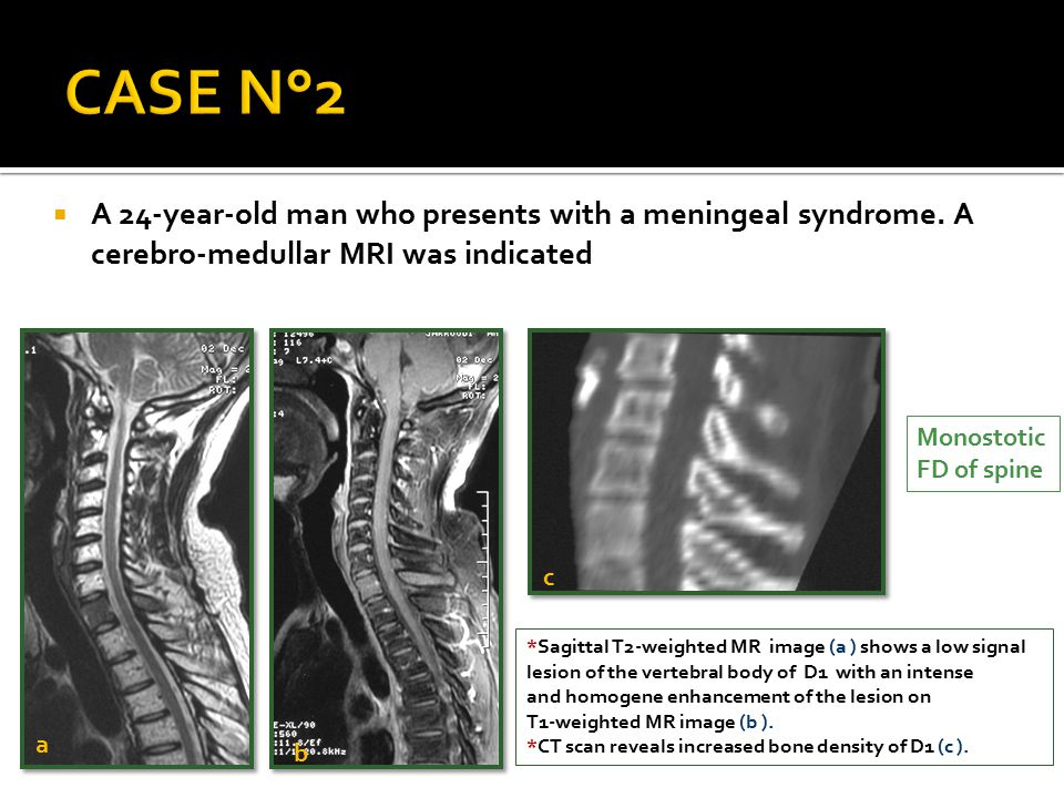  A 24-year-old man who presents with a meningeal syndrome. A cerebro-medullar MRI was indicated *Sagittal T2-weighted MR image (a ) shows a low signa
