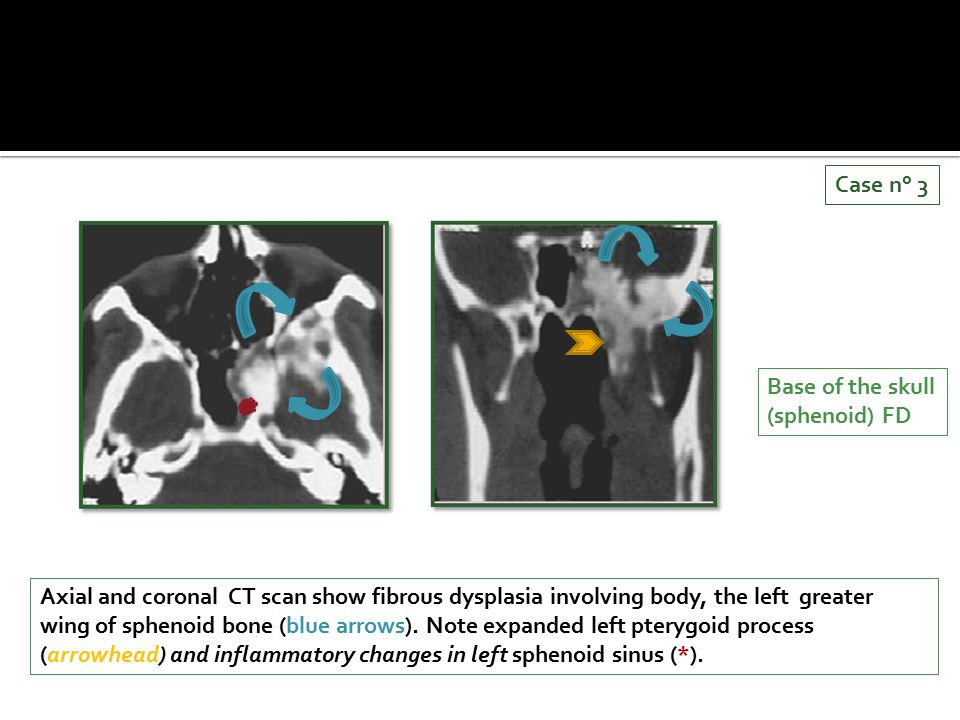Axial and coronal CT scan show fibrous dysplasia involving body, the left greater wing of sphenoid bone (blue arrows). Note expanded left pterygoid pr
