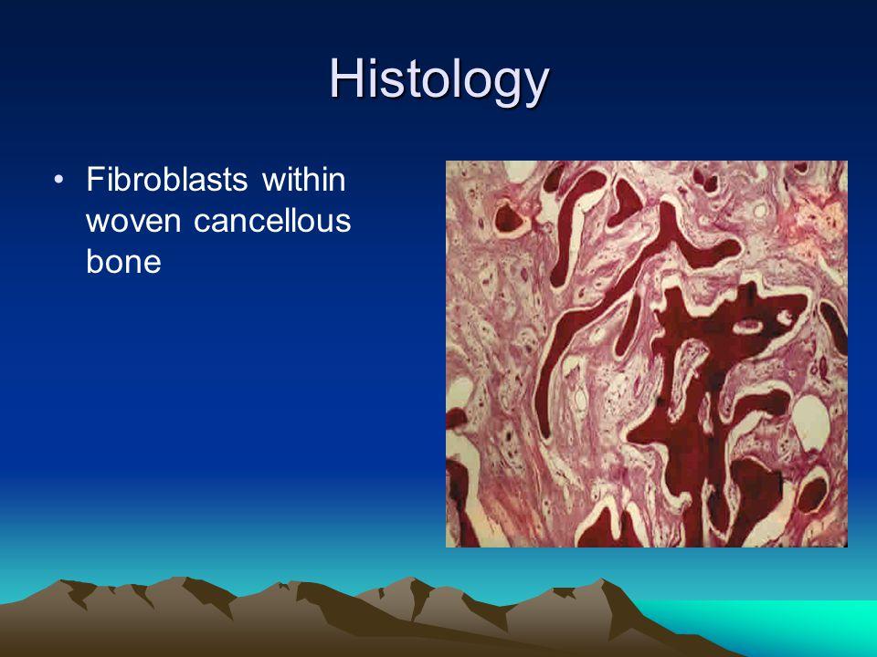 Histology Fibroblasts within woven cancellous bone