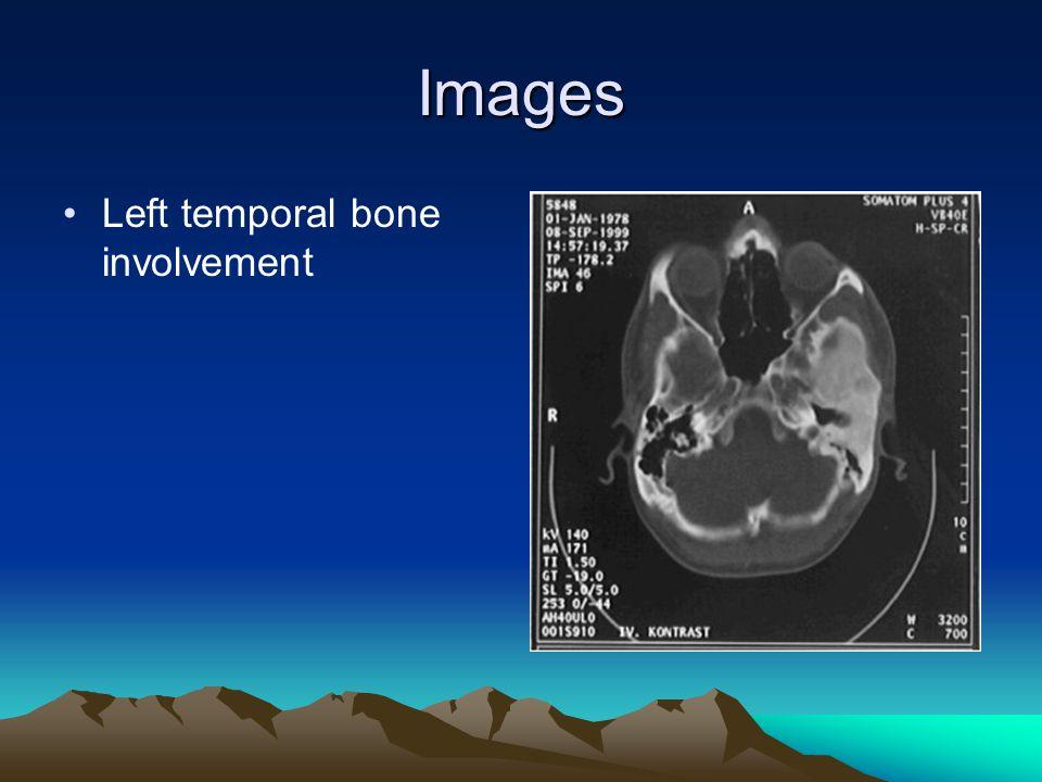 Images Left temporal bone involvement