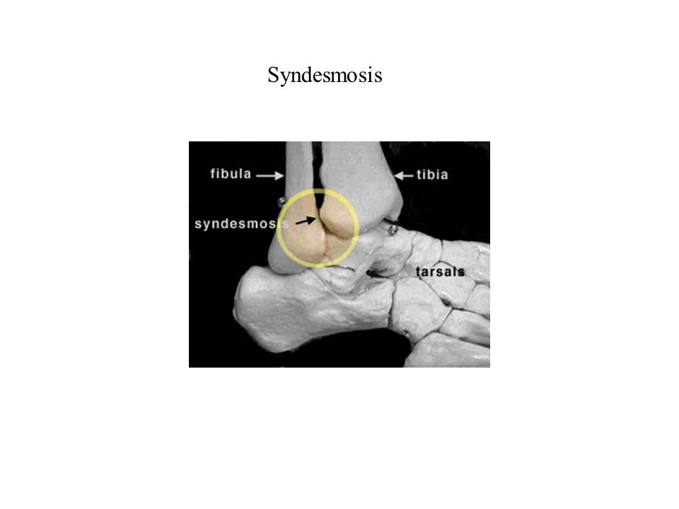 Cartilagenous Articulations Hyaline or fibrous cartilage joins bones; limited motion in response to twisting, compression, stress Synchondrosis – hyaline cartilage joins bones.