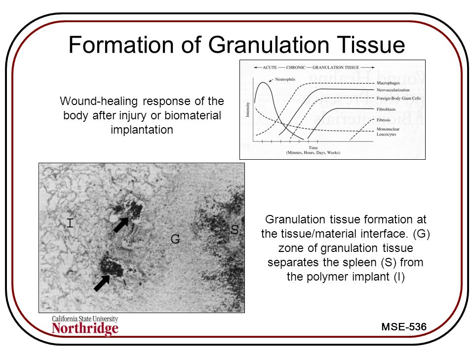 MSE-536 Formation of Granulation Tissue Wound-healing response of the body after injury or biomaterial implantation Granulation tissue formation at the tissue/material interface.