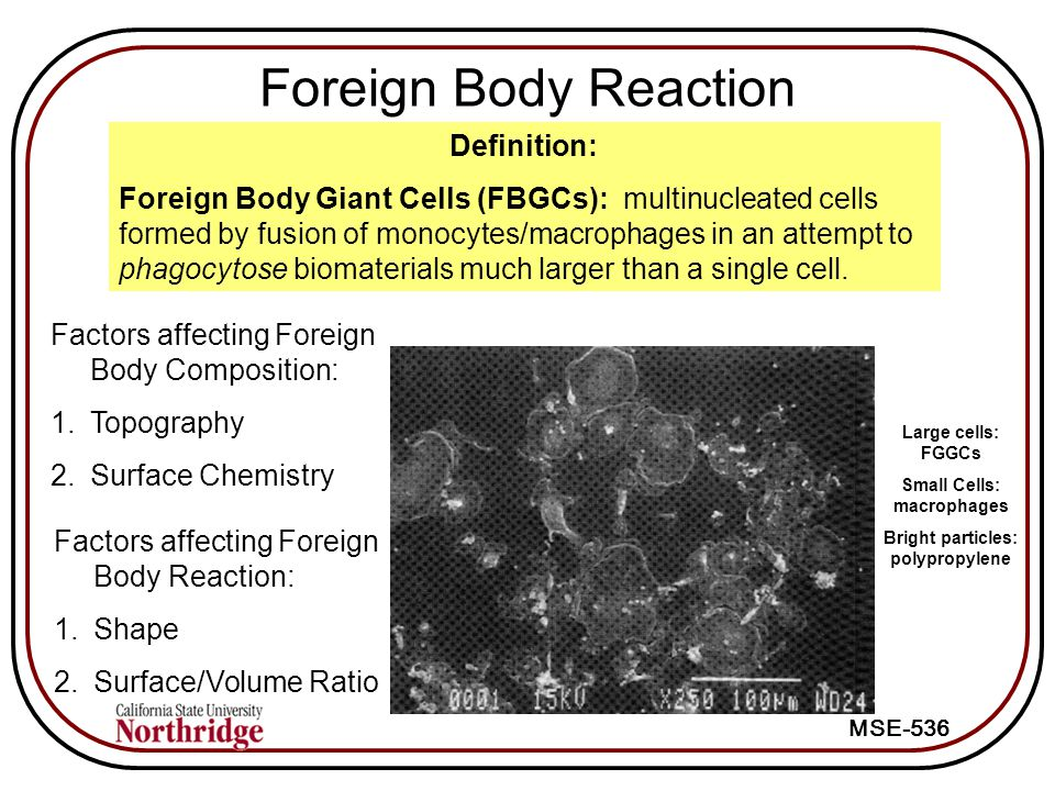 MSE-536 Foreign Body Reaction Definition: Foreign Body Giant Cells (FBGCs): multinucleated cells formed by fusion of monocytes/macrophages in an attempt to phagocytose biomaterials much larger than a single cell.