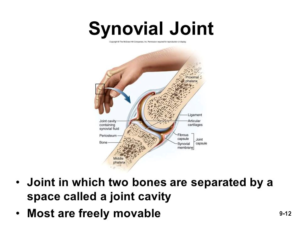 9-12 Synovial Joint Joint in which two bones are separated by a space called a joint cavity Most are freely movable