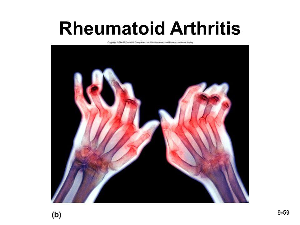 9-59 Rheumatoid Arthritis