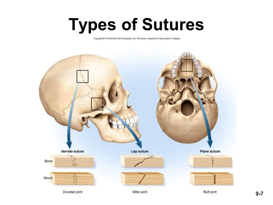 9-7 Types of Sutures