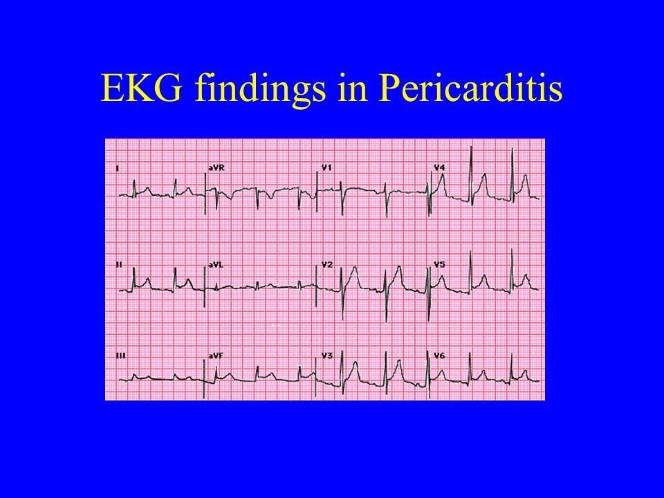 EKG findings in Pericarditis
