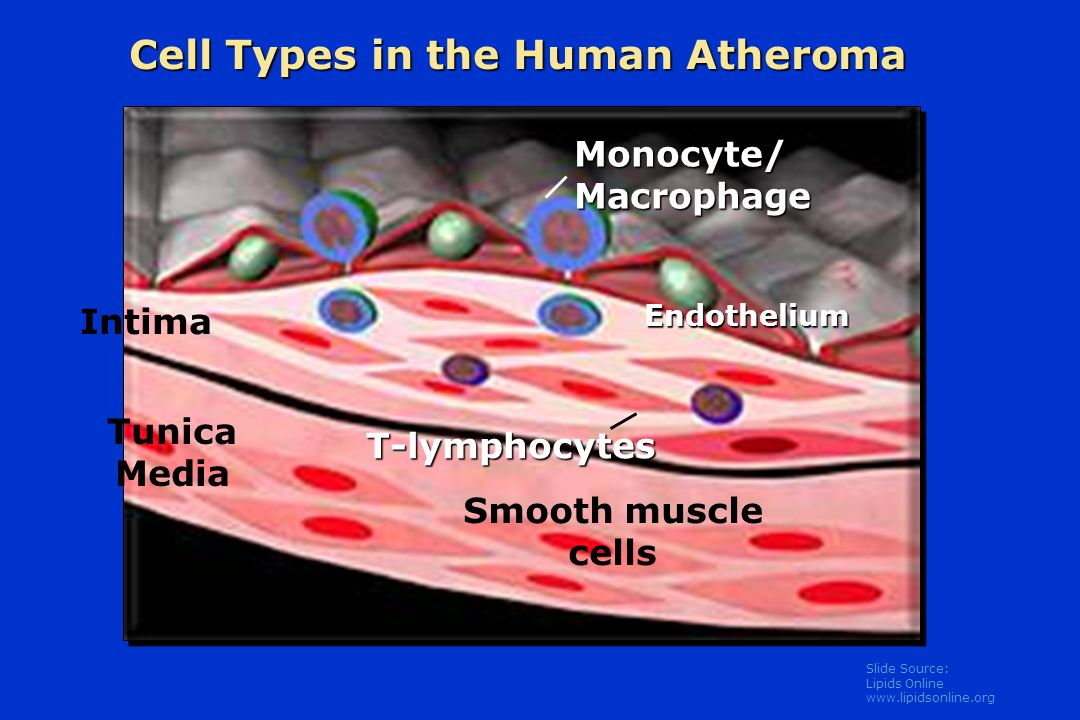 Slide Source: Lipids Online www.lipidsonline.org Cell Types in the Human Atheroma Monocyte/ Macrophage T-lymphocytes Tunica Media Intima Smooth muscle