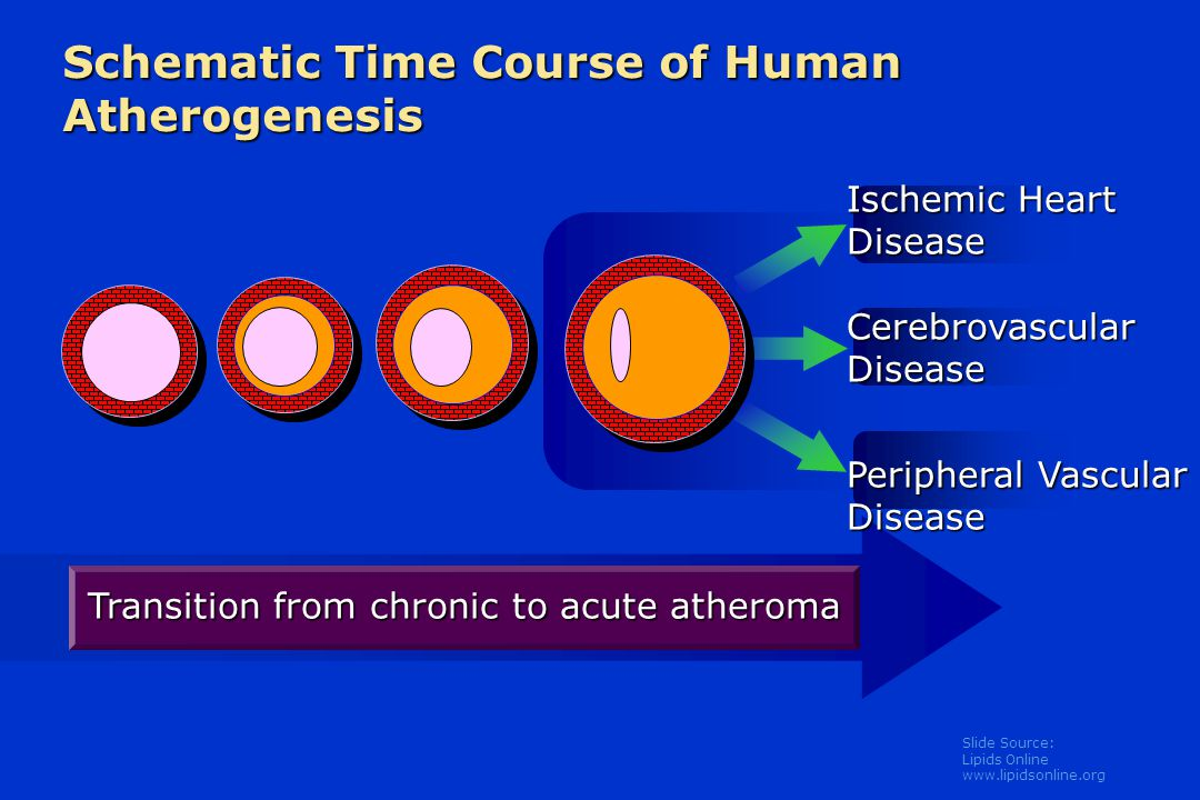 Slide Source: Lipids Online www.lipidsonline.org Schematic Time Course of Human Atherogenesis Transition from chronic to acute atheroma Ischemic Heart