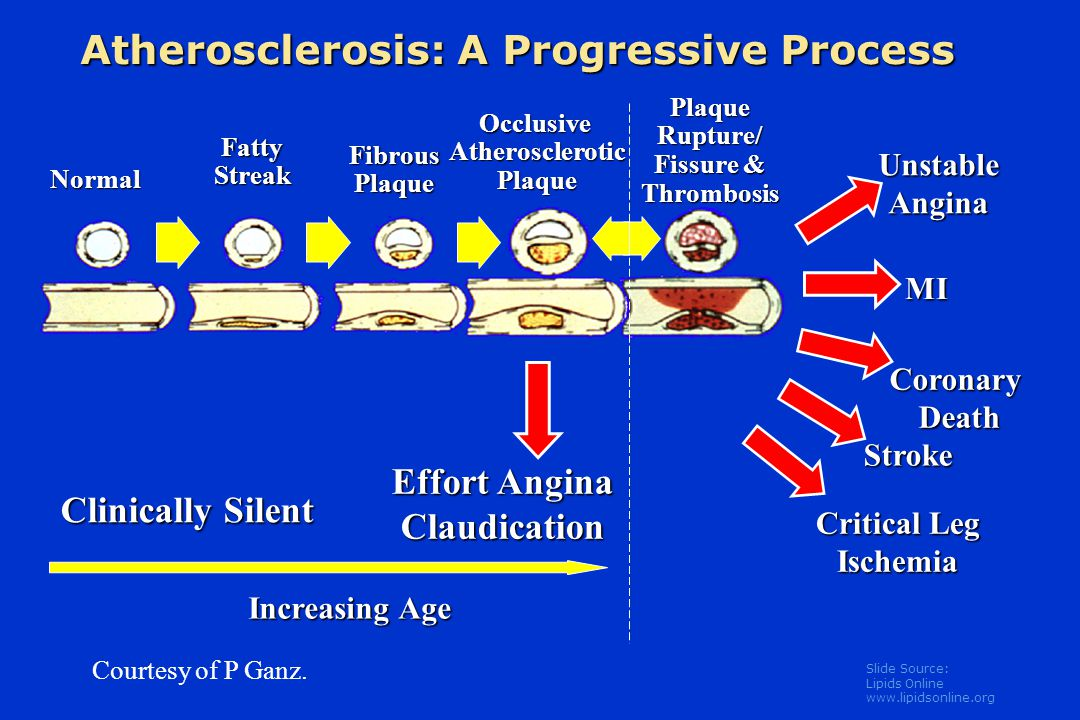 Slide Source: Lipids Online www.lipidsonline.org Matrix Metabolism and Integrity of the Plaque's Fibrous Cap Libby P.