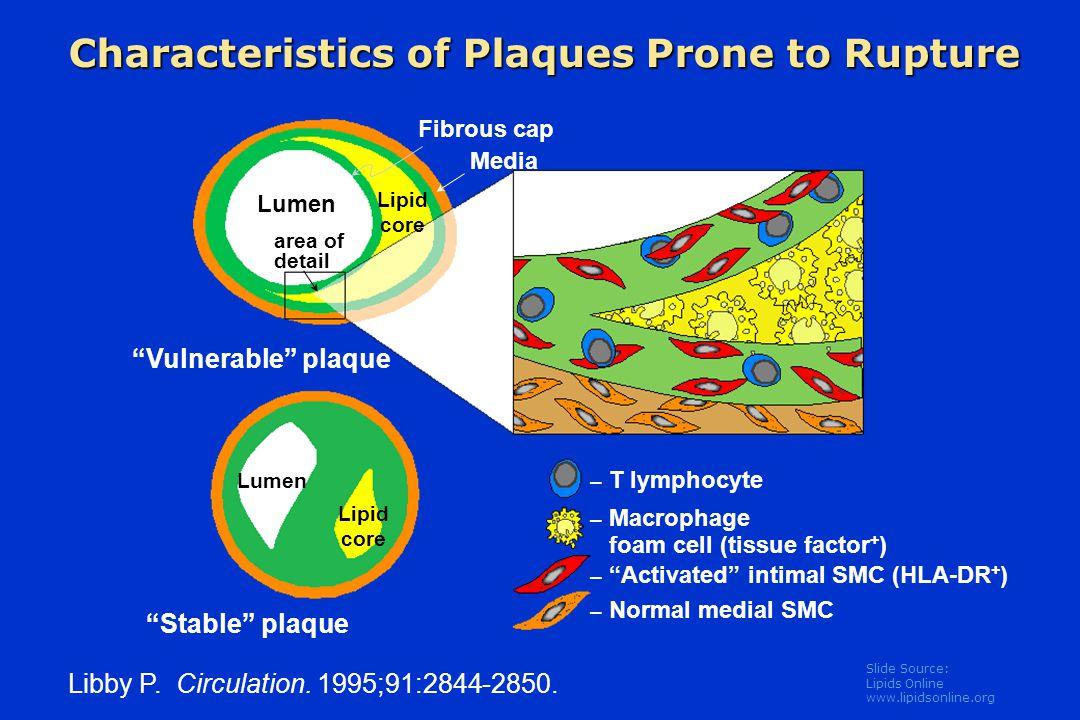 Slide Source: Lipids Online www.lipidsonline.org Libby P.