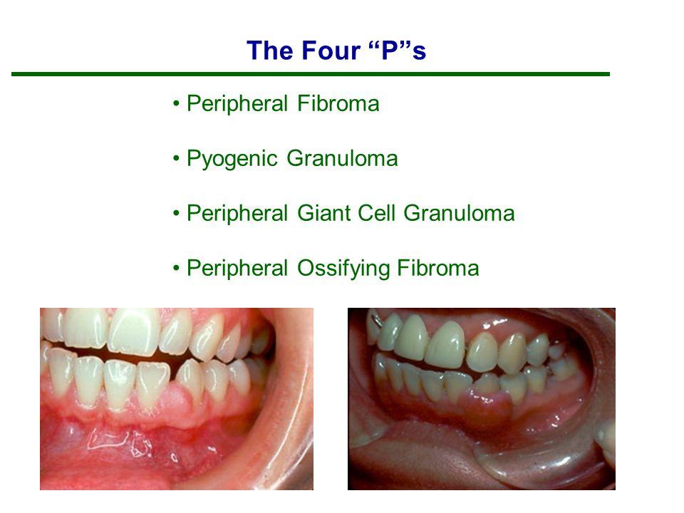 "The Four ""P""s Peripheral Fibroma Pyogenic Granuloma Peripheral Giant Cell Granuloma Peripheral Ossifying Fibroma"
