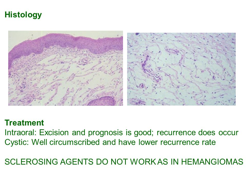 Histology Treatment Intraoral: Excision and prognosis is good; recurrence does occur Cystic: Well circumscribed and have lower recurrence rate SCLEROSING AGENTS DO NOT WORK AS IN HEMANGIOMAS