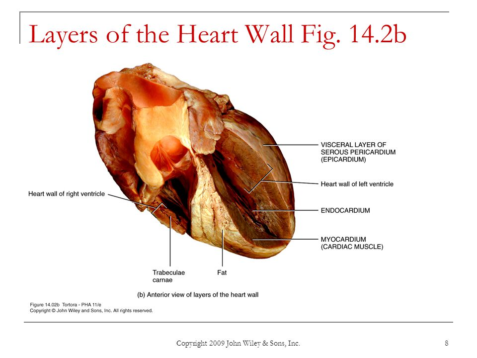 Copyright 2009 John Wiley & Sons, Inc. 8 Layers of the Heart Wall Fig. 14.2b