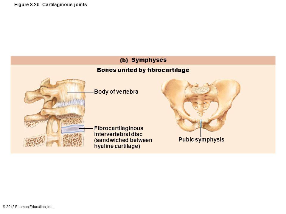 © 2013 Pearson Education, Inc. Figure 8.2b Cartilaginous joints. Symphyses Bones united by fibrocartilage Body of vertebra Fibrocartilaginous interver