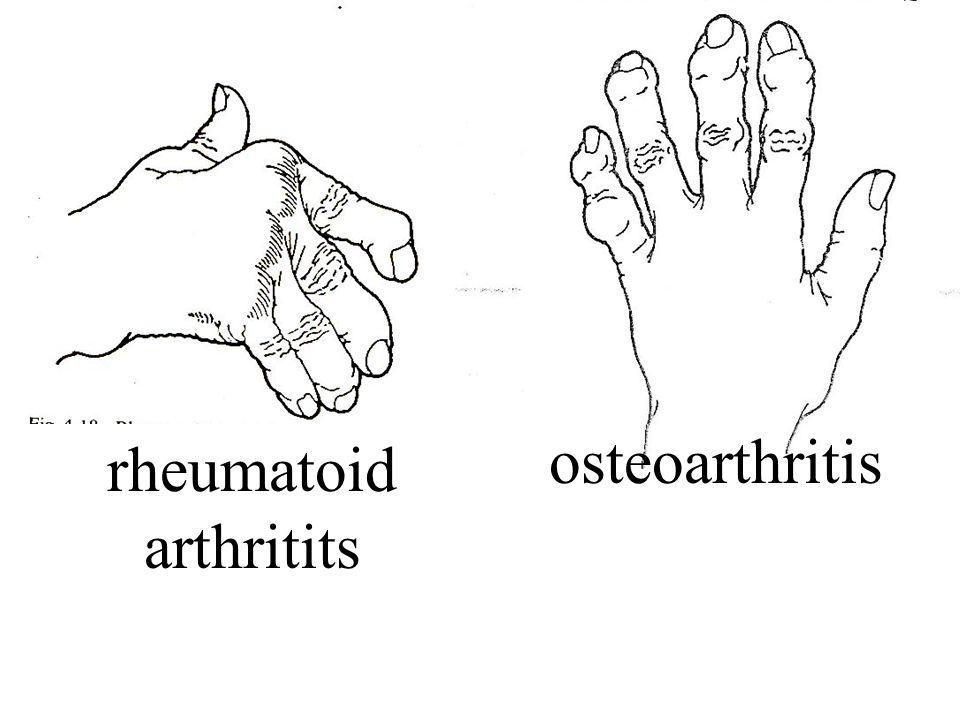 Arthritis rheumatoid arthritits osteoarthritis