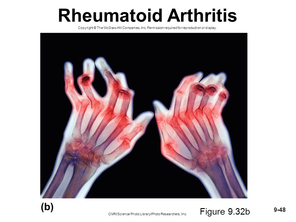 9-48 Rheumatoid Arthritis Copyright © The McGraw-Hill Companies, Inc. Permission required for reproduction or display. (b) CNRI/Science Photo Library/