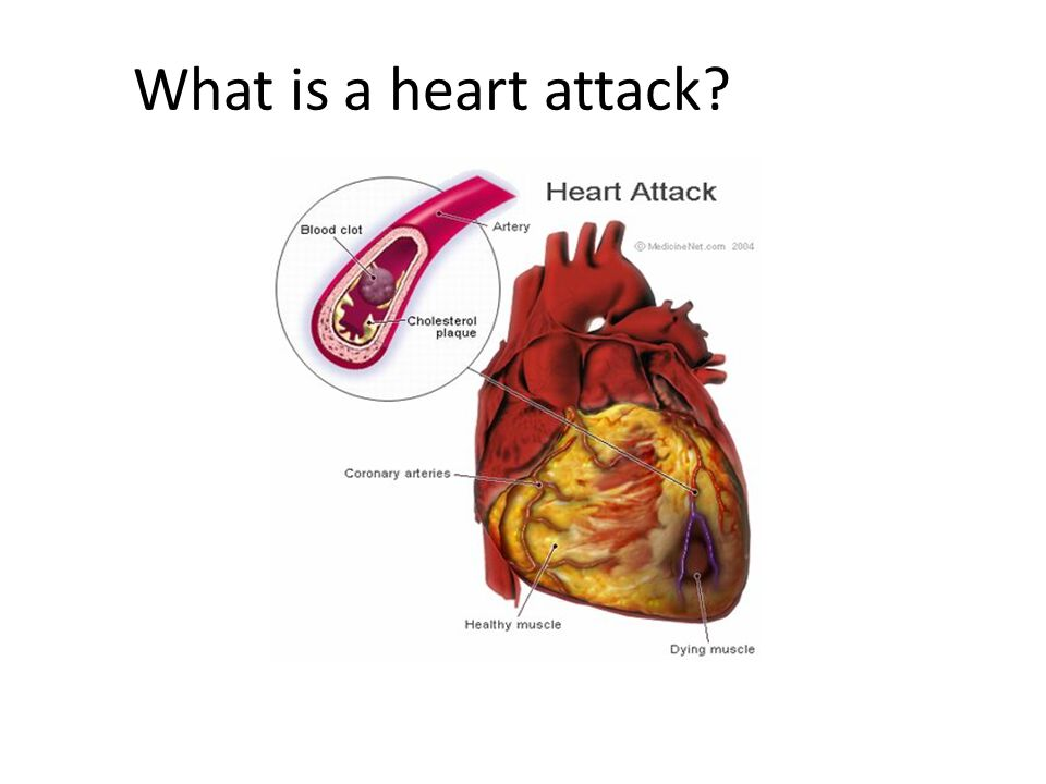 What is a heart attack