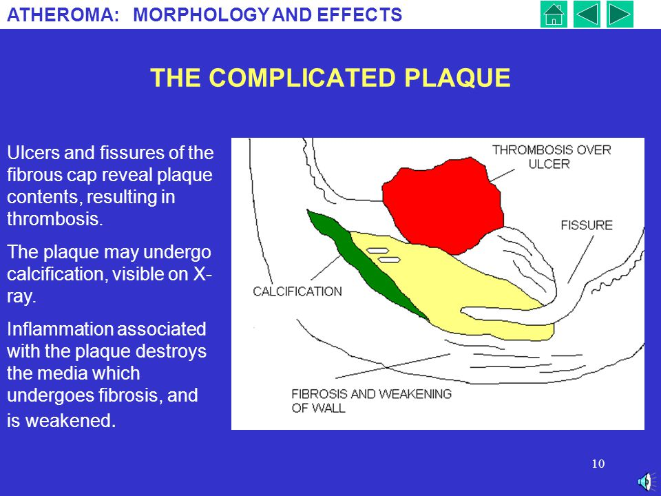 ATHEROMA: MORPHOLOGY AND EFFECTS 9 THE FIBROUS PLAQUE