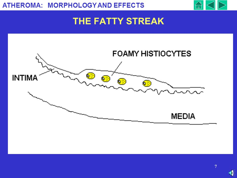ATHEROMA: MORPHOLOGY AND EFFECTS 7 THE FATTY STREAK.