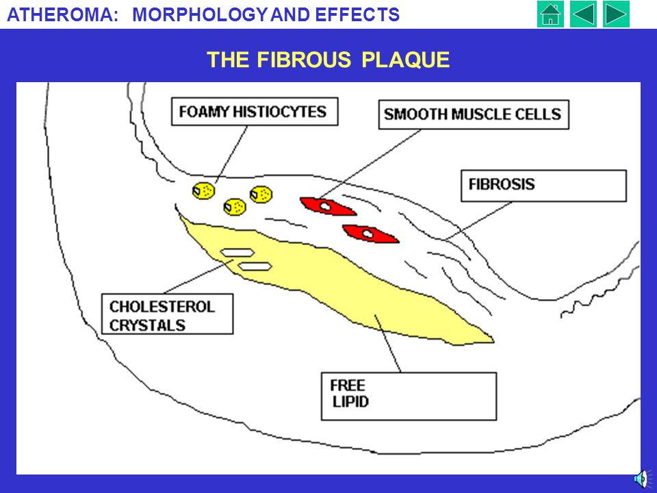 ATHEROMA: MORPHOLOGY AND EFFECTS 8 THE FIBROUS PLAQUE This is the second stage in development of atheroma. Lipid accumulates, free and in foamy histio