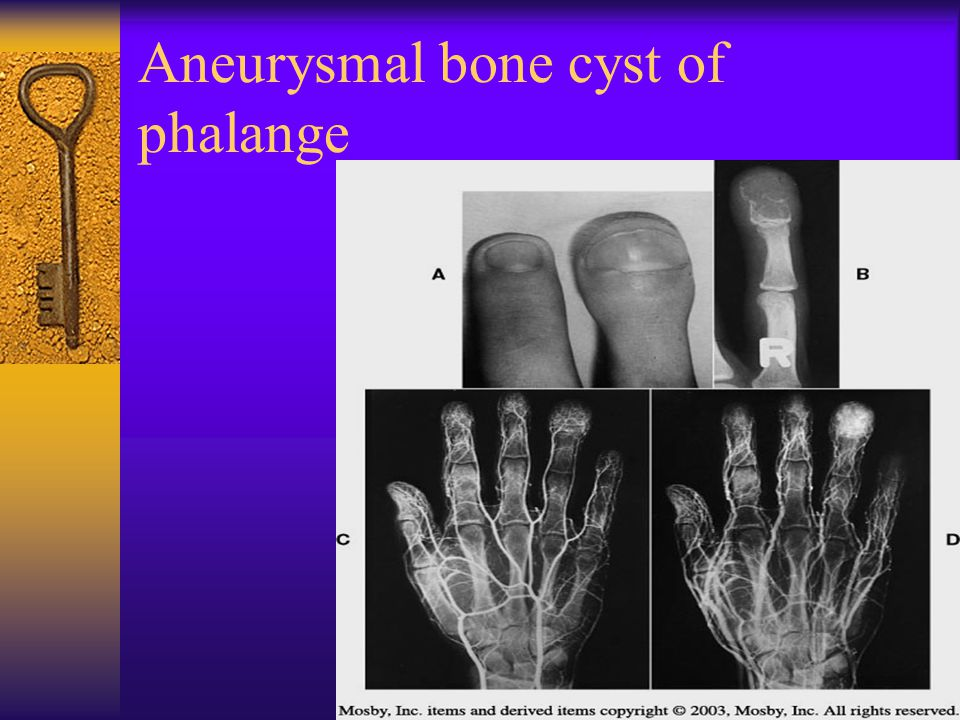 Aneurysmal bone cyst of phalange
