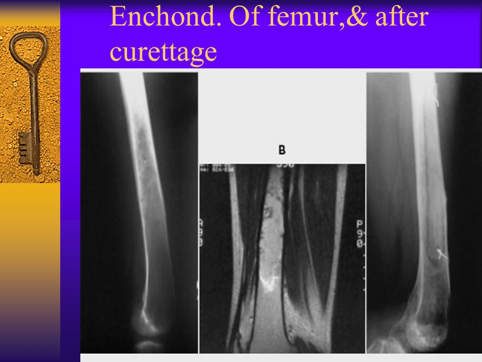 Enchond. Of femur,& after curettage