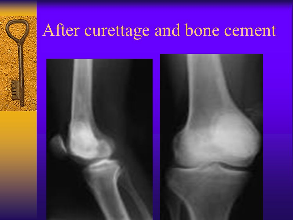 After curettage and bone cement