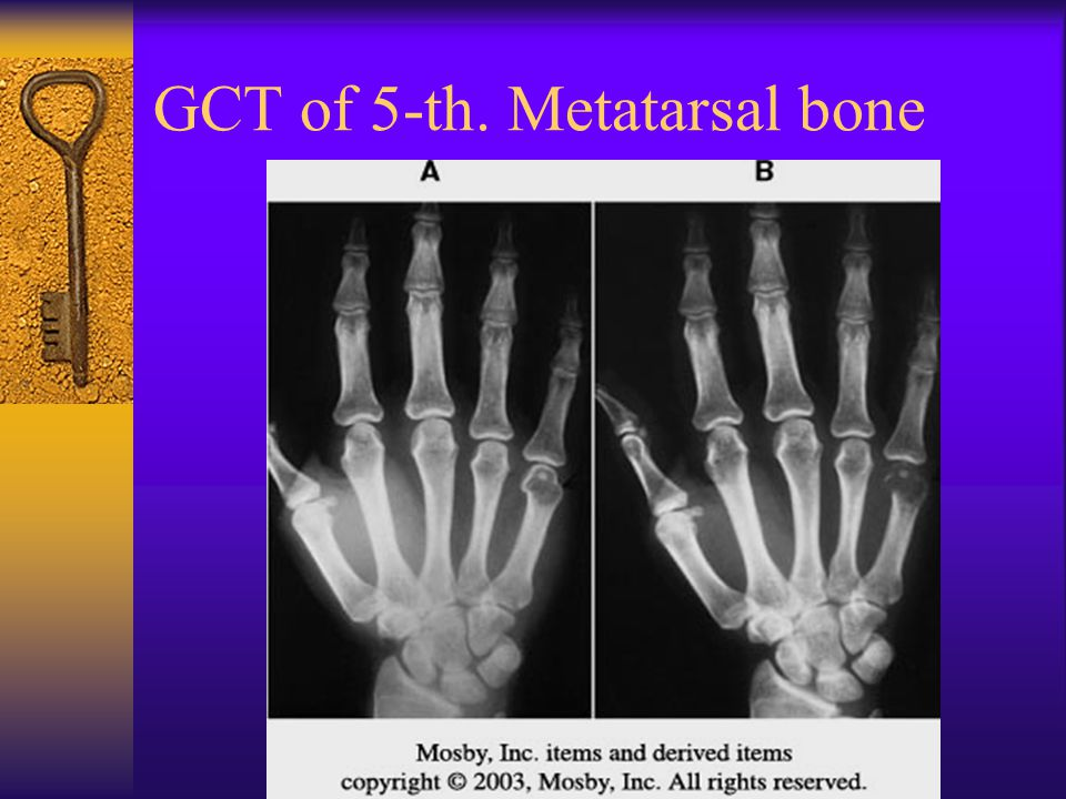 GCT of 5-th. Metatarsal bone
