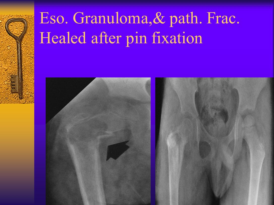 Eso. Granuloma,& path. Frac. Healed after pin fixation