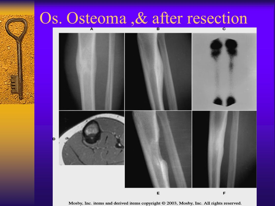 Os. Osteoma,& after resection