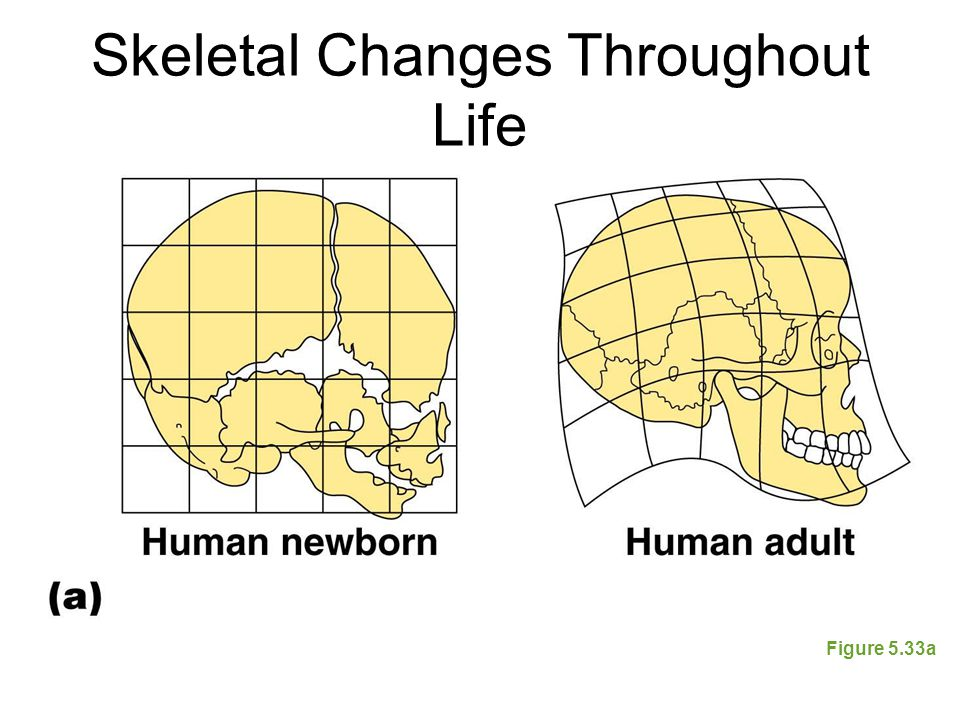 Skeletal Changes Throughout Life Figure 5.33a