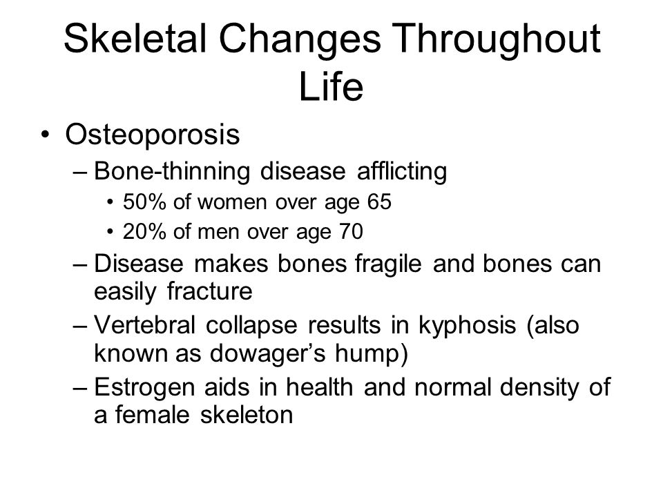 Skeletal Changes Throughout Life Osteoporosis –Bone-thinning disease afflicting 50% of women over age 65 20% of men over age 70 –Disease makes bones f