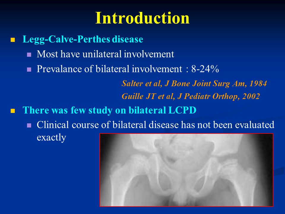 Introduction Legg-Calve-Perthes disease Most have unilateral involvement Prevalance of bilateral involvement : 8-24% Salter et al, J Bone Joint Surg Am, 1984 Guille JT et al, J Pediatr Orthop, 2002 There was few study on bilateral LCPD Clinical course of bilateral disease has not been evaluated exactly
