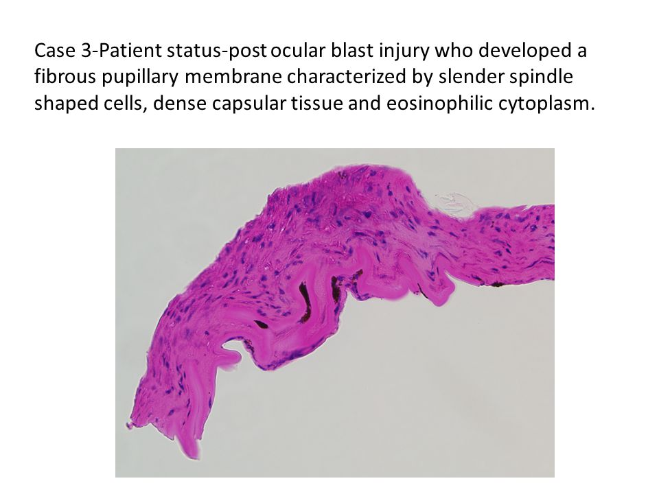 Case 3-Patient status-post ocular blast injury who developed a fibrous pupillary membrane characterized by slender spindle shaped cells, dense capsular tissue and eosinophilic cytoplasm.