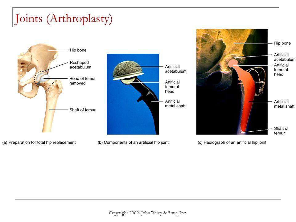 Copyright 2009, John Wiley & Sons, Inc. Joints (Arthroplasty)