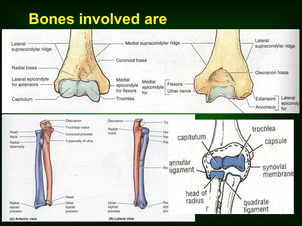 Elbow Joint Type Hinge type of synovial joint Articulation B/W the trochlea & capitulum of humerus & trochlear notch of ulna & head of the radius