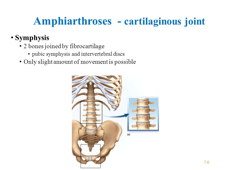 Diarthrosis - Synovial Joint Joint in which two bones are separated by a space called a joint cavity Most are freely movable 7-7