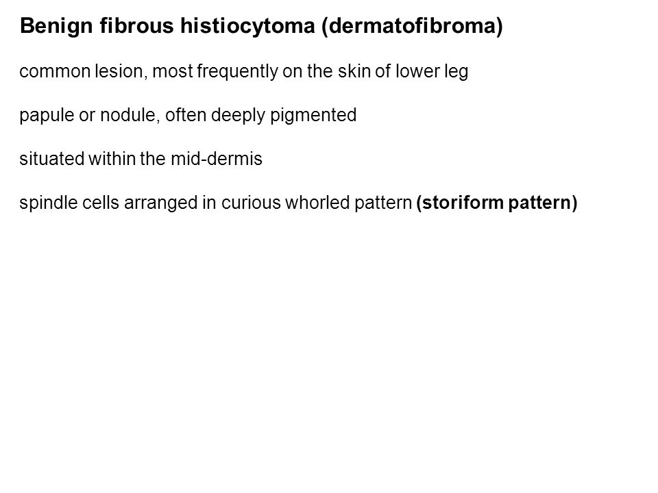 Benign fibrous histiocytoma (dermatofibroma) common lesion, most frequently on the skin of lower leg papule or nodule, often deeply pigmented situated