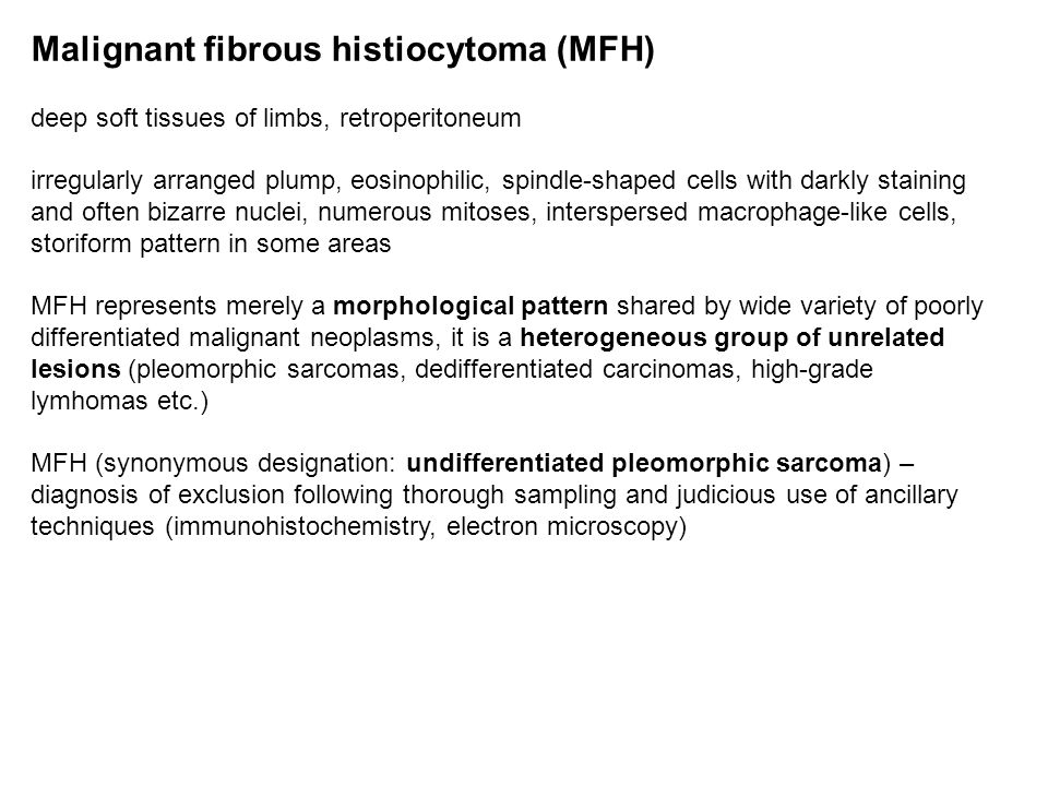 Malignant fibrous histiocytoma (MFH) deep soft tissues of limbs, retroperitoneum irregularly arranged plump, eosinophilic, spindle-shaped cells with d