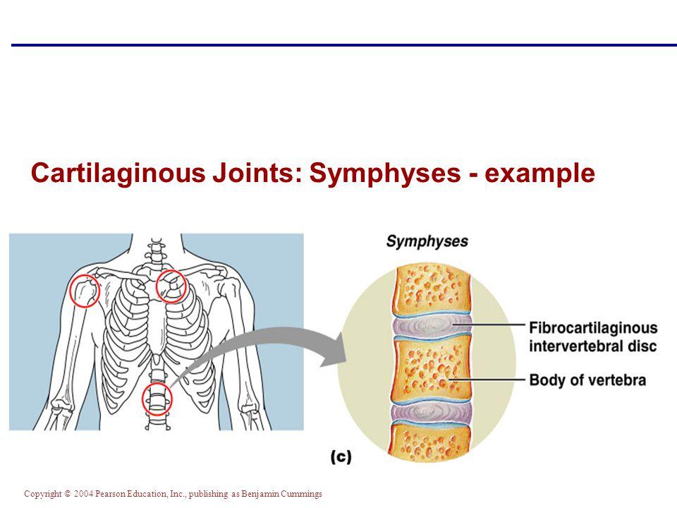 Copyright © 2004 Pearson Education, Inc., publishing as Benjamin Cummings Cartilaginous Joints: Symphyses - example