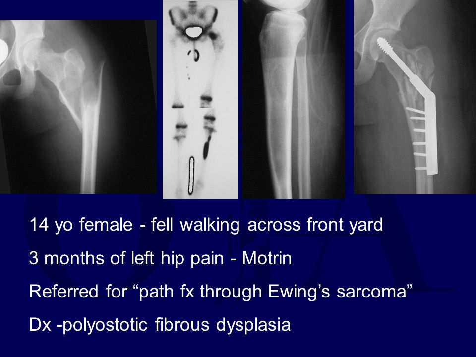 """14 yo female - fell walking across front yard 3 months of left hip pain - Motrin Referred for """"path fx through Ewing's sarcoma"""" Dx -polyostotic fibrou"""
