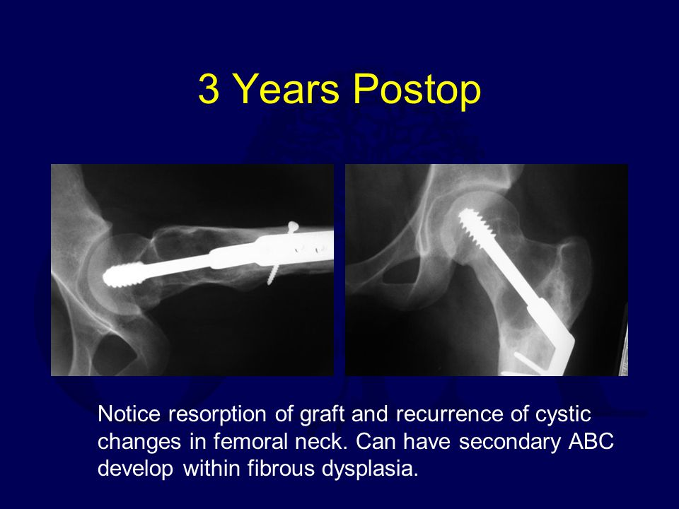 3 Years Postop Notice resorption of graft and recurrence of cystic changes in femoral neck. Can have secondary ABC develop within fibrous dysplasia.