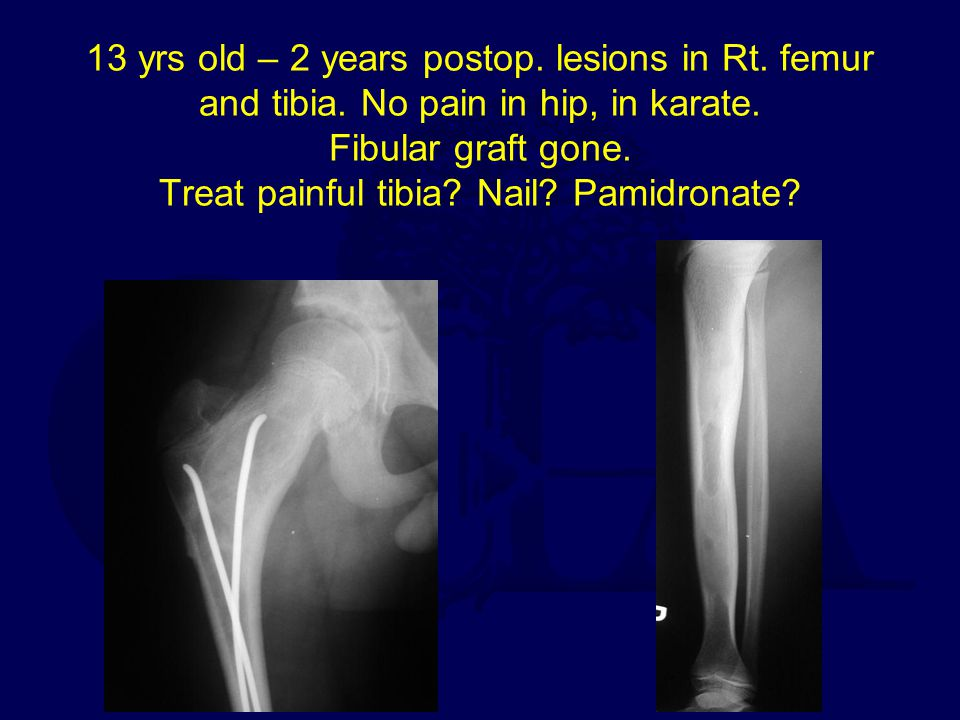 13 yrs old – 2 years postop. lesions in Rt. femur and tibia. No pain in hip, in karate. Fibular graft gone. Treat painful tibia? Nail? Pamidronate?