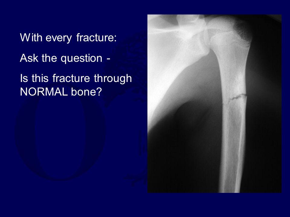 Stress Fractures Can occur through pathologic bone Congenital abnormalities, metabolic disorders (osteoporosis, osteomalacia)