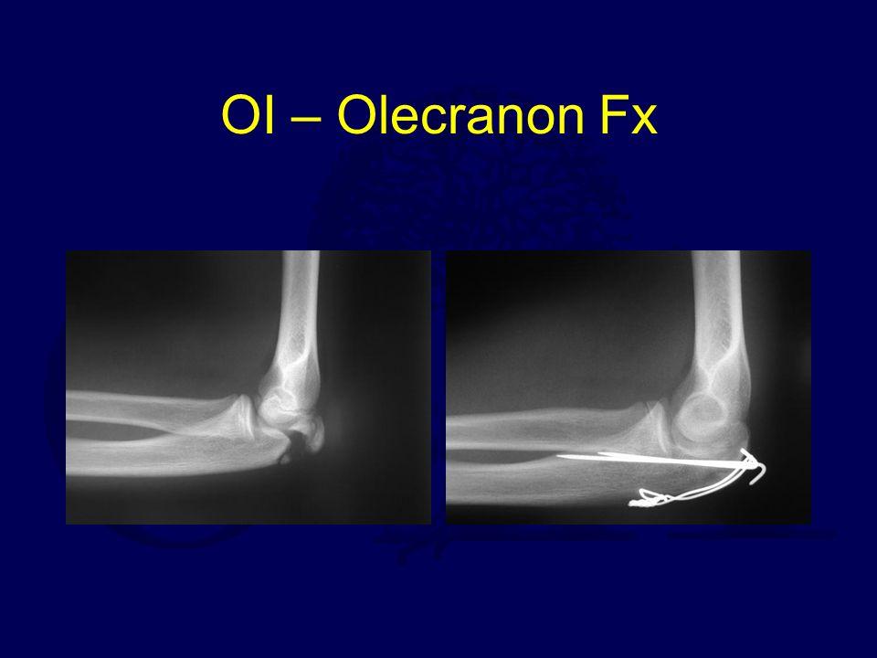 OI – Olecranon Fx