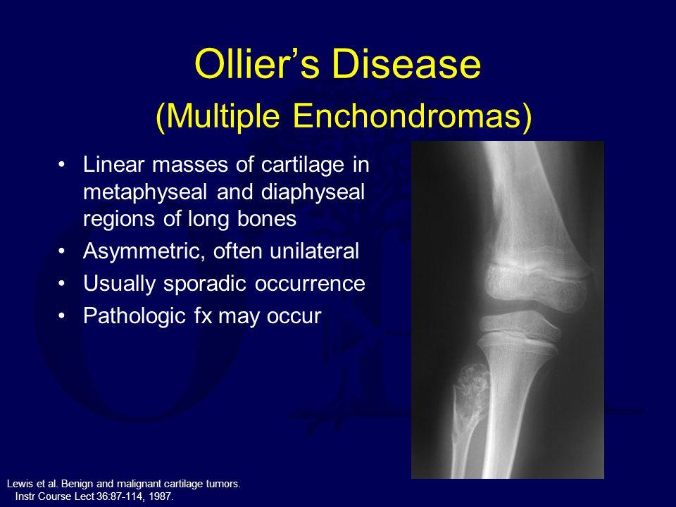 Ollier's Disease (Multiple Enchondromas) Linear masses of cartilage in metaphyseal and diaphyseal regions of long bones Asymmetric, often unilateral U