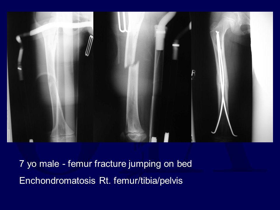7 yo male - femur fracture jumping on bed Enchondromatosis Rt. femur/tibia/pelvis