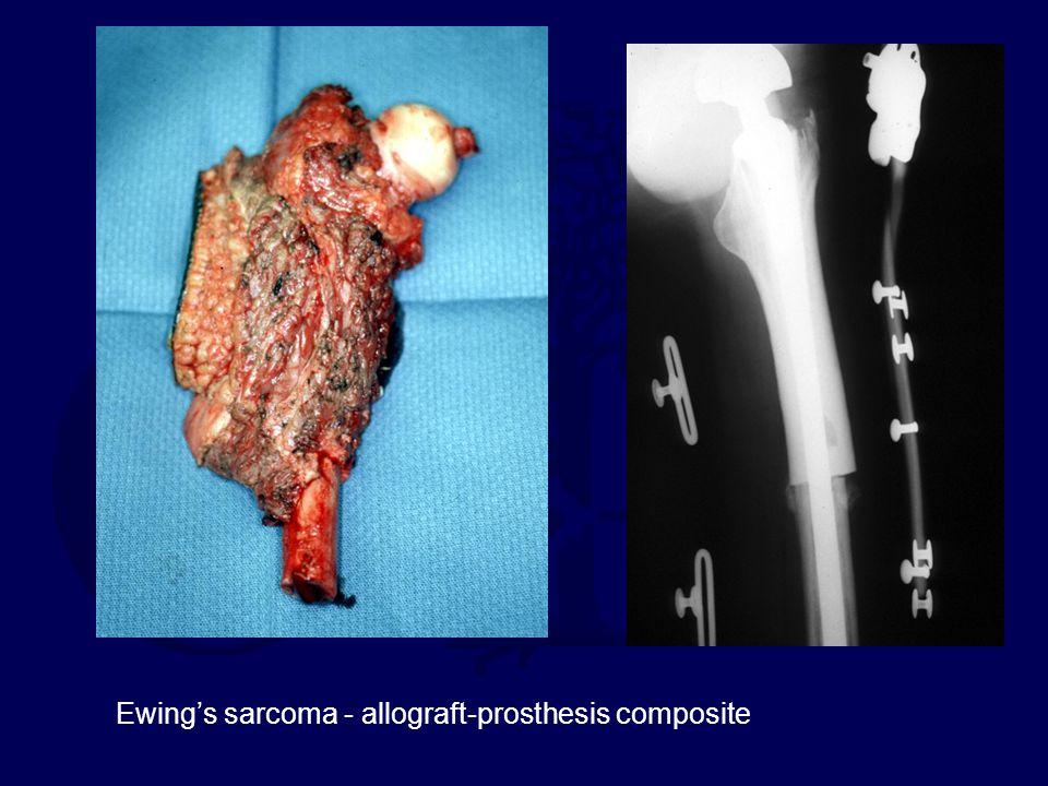 Ewing's sarcoma - allograft-prosthesis composite