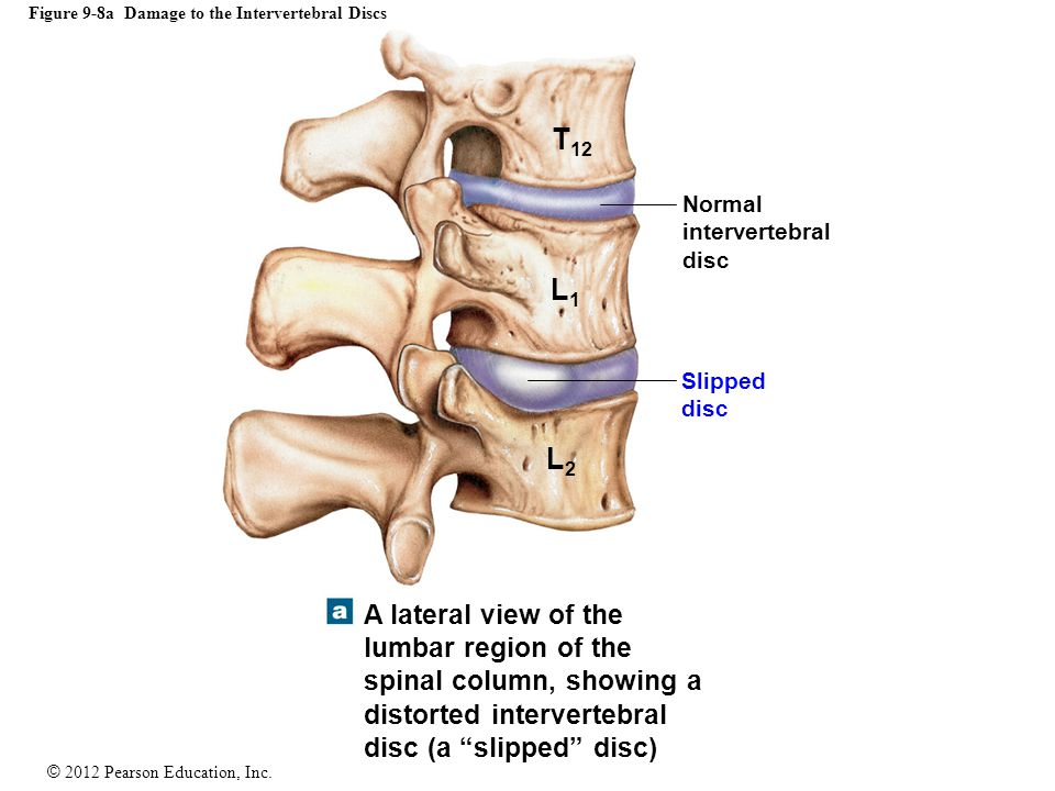 © 2012 Pearson Education, Inc. Figure 9-8a Damage to the Intervertebral Discs Normal intervertebral disc Slipped disc T 12 L1L1 L2L2 A lateral view of